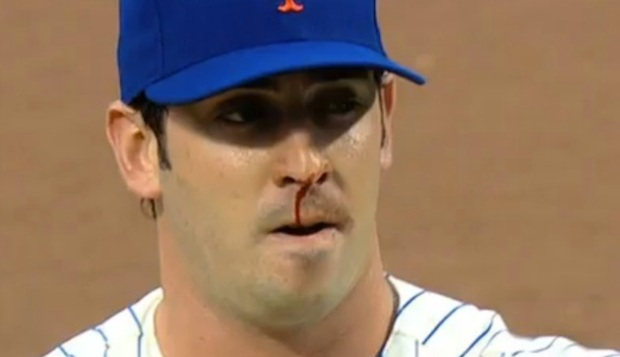 matt-harvey-nose-bleed
